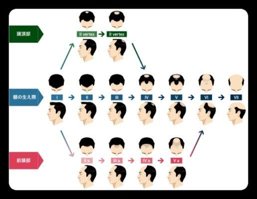 薄毛の進行段階の図