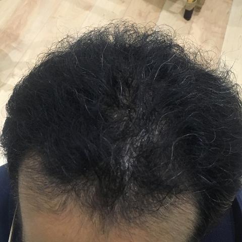 AGA治療75日目
