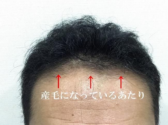 発毛しないかもしれない前頭部