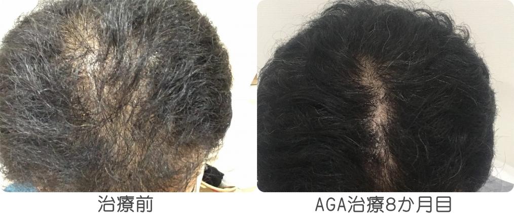 AGA治療8か月目の比較画像