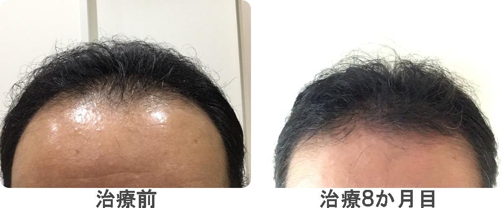 治療8か月目の比較