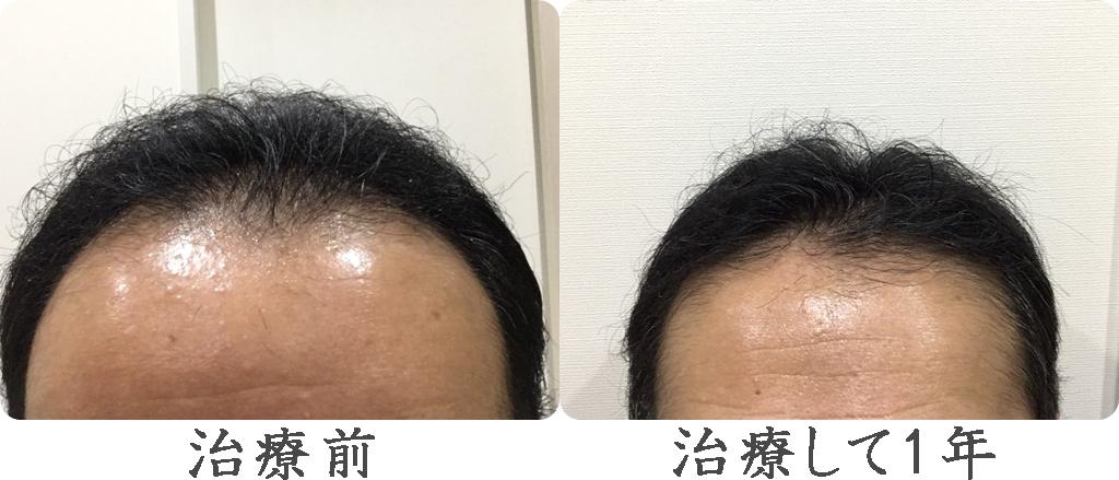 AGA治療から12か月後